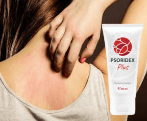 Psoridex plus cream, composition - does it work?