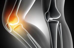 Pain Relief mennyibe kerül, ár